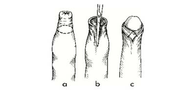melyik pénisz normális